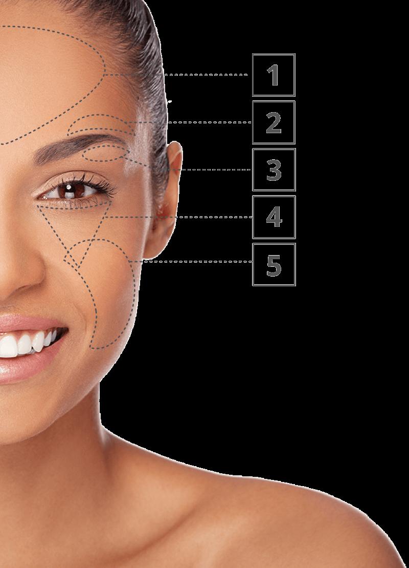 zonas del rostro a tratar